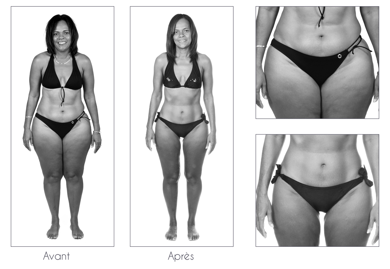 Résultats Anne Cali perte de poids de 17kg